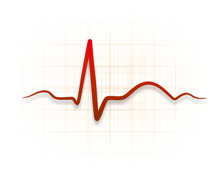 illustration of a cardioid during an electrocardiography illustration
