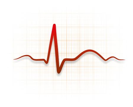 cardioid: ilustraci�n de un cardioide durante una electrocardiograf�a