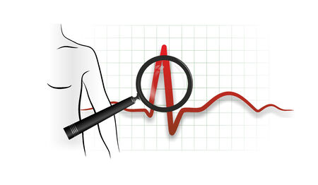 electrocardiograph: abstract illustration of a heartbeat from electrocardiograph