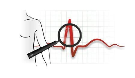 cardioid: ejemplo abstracto de un latido del electrocardi�grafo