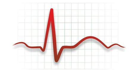 cardioid: ejemplo abstracto de un latido del electrocardiógrafo