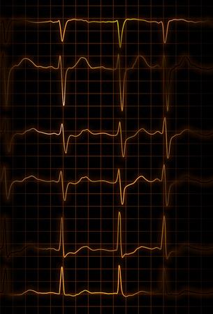 cardioid: ilustraci�n abstracta de diferentes latidos de electrocardi�grafo