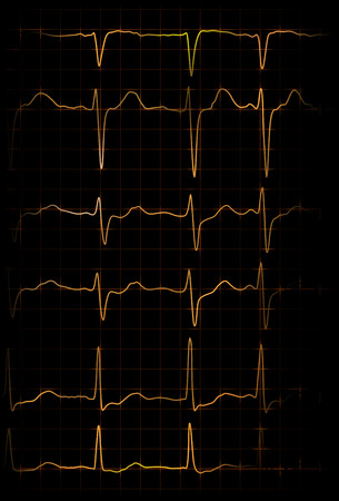 myocardium: abstract illustration of different heartbeats from electrocardiograph