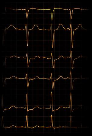 cardioid: ilustración abstracta de diferentes latidos de electrocardiógrafo