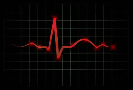 cardioid: un latido del corazón médico como de un electrocardiógrafo Foto de archivo