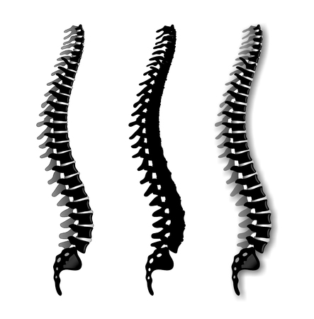 spinal disc herniation: simplified illustration of a spine from the side