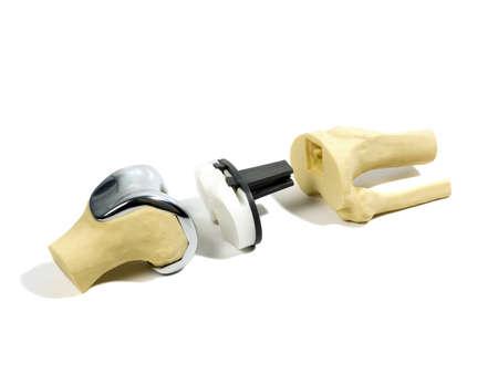 de rodillas: stydy modelo de plástico de un reemplazo de rodilla Foto de archivo