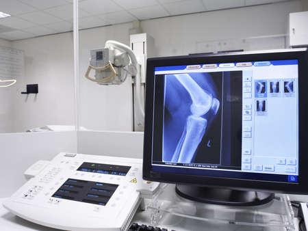 x-ray obraz kolana