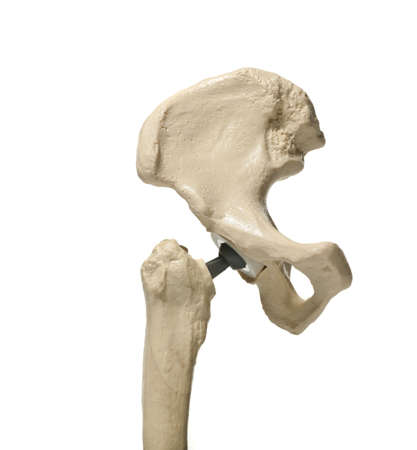 anatomic study tool of an human hip replacenment photo
