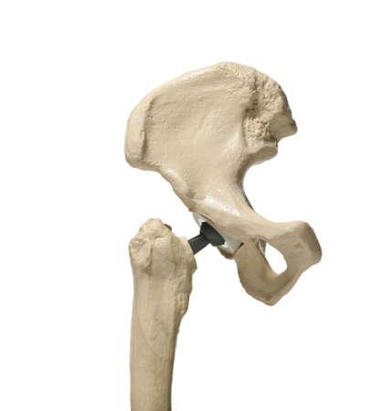 anatomic study tool of an human hip replacenment