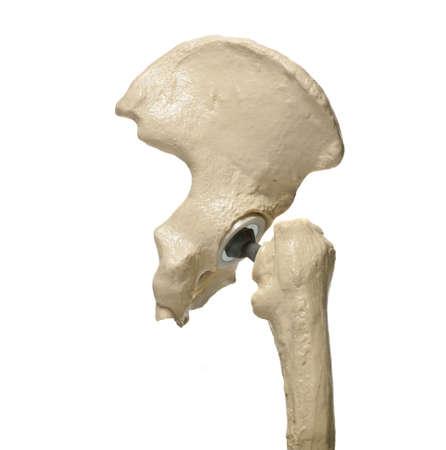 outil d'�tude anatomique d'une hanche humaine replacenment