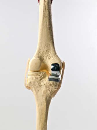 outil d'�tude anatomique d'un genou humain Banque d'images