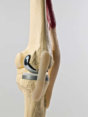 anatomic study model of an human knee replacement