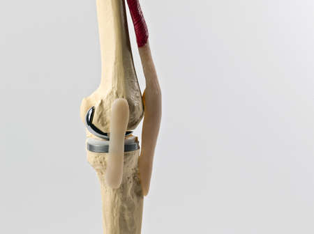anatomic study tool of an human knee replacement Stock Photo