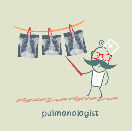internist: pulmonologist shows an X-ray of human lung