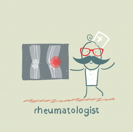 rheumatologist says about the pain in the joints of the feet and shows rengen
