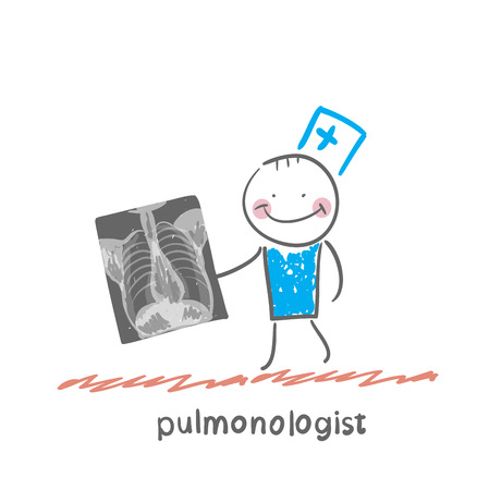 pulmonology: pulmonologist with an X-ray of human lung