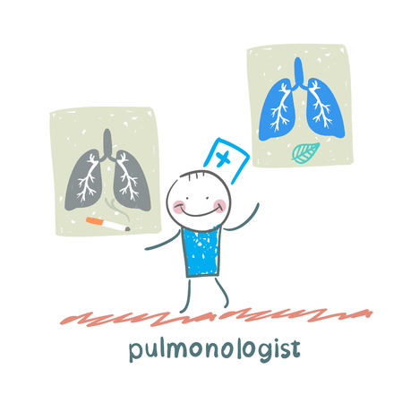 internist: pulmonologist with placards on which painted light smoker and a healthy person Illustration