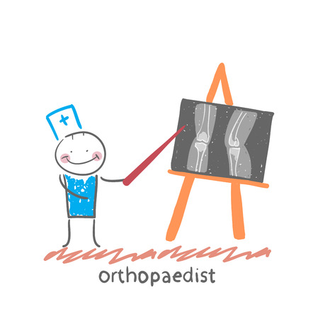 orthopaedist shows an X-ray