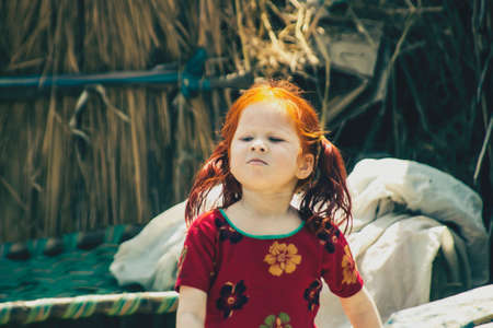albino girl in a small Indian village near Lucknow, India