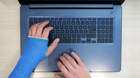 synthetic cast hand working on laptop surfs internet
