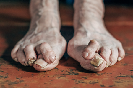 Barefoot which have bunion (hallux valgus) problem on wooden brown floor. Deformation of the joint connecting the big toe to the foot Foto de archivo - 117435909