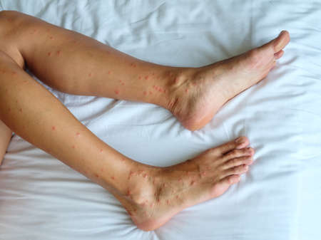 Female legs with many red spot and scar from sand fly bites in Thailand