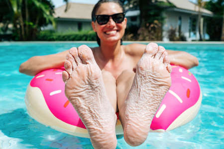 Woman showing feet got wrinkly from stayed in a pool so long