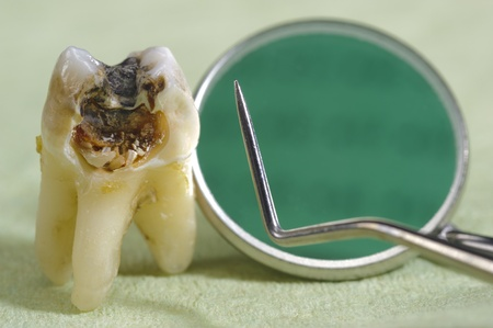 dental caries: extracted tooth with dental caries