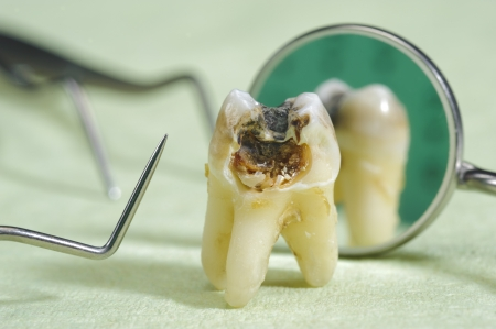 tooth root: tooth with caries
