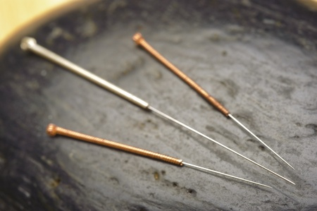 alternative medicine with acupuncture photo