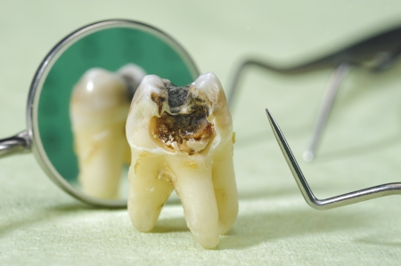 tooth with dental caries Stok Fotoğraf