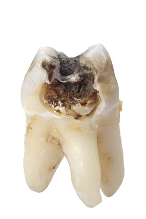 amalgam: extracted tooth with cavity and caries