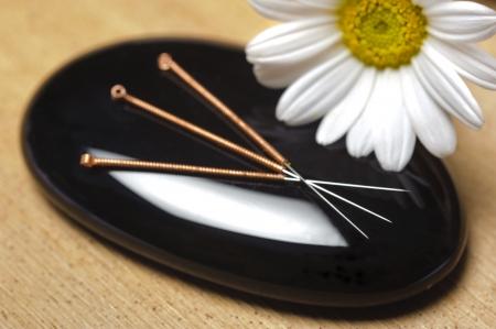 alternatieve geneeskunde met acupunctuur
