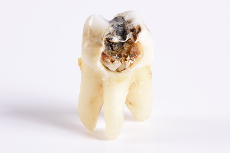 molar: extracted molar tooth with massive caries Stock Photo