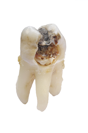 extracted molar tooth with caries and amalgam Standard-Bild
