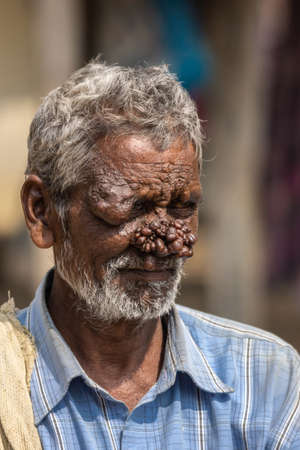 Belathur, Karnataka, India - November 1, 2013: Closeup of man with neurofibromatosis has face deformed with group of dark brown tumors on his nose. Blue shirt and gray hair. Editorial