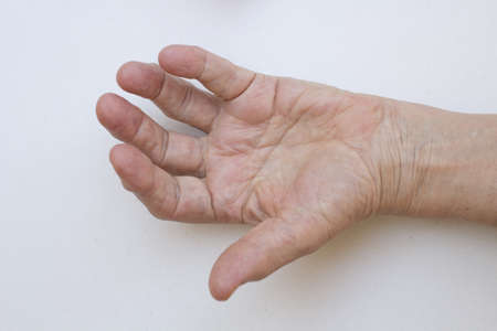 arthritic: Closeup of senior hand with strong arthritis