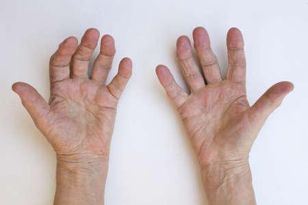 Closeup of senior hands with strong arthritis