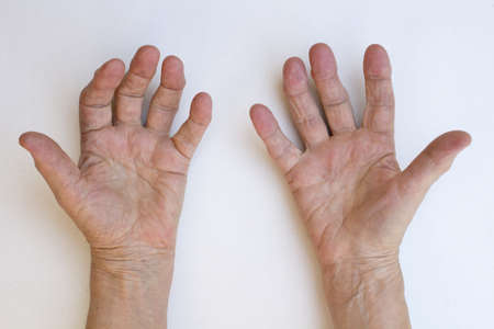 arthritis: Closeup of senior hands with strong arthritis