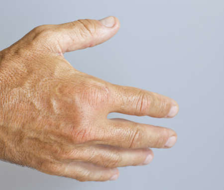 arthritic: A picture of swollen male hand-closeup