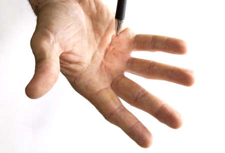 Male hand shows Dupuytren s disease, early stadium Stock Photo