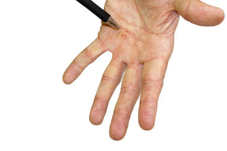 incision: Male hand shows Dupuytren s disease, early stadium, isolated od white