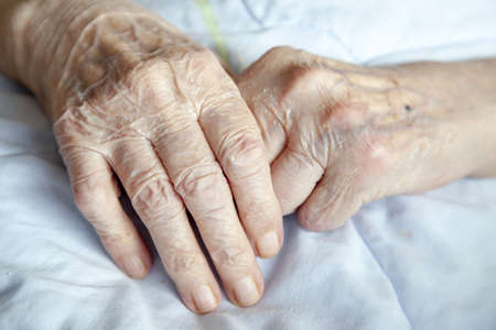 arthritic: Series of photos  Hands of 92 years old lady - close up – selective focus