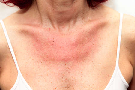 Woman with sunburns and Allergic reaction after unprotected sunbathing, acute state  photo