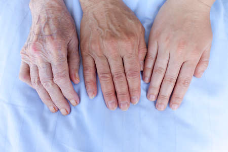 arthritic: Hands of an 93, 52 and 25 years old women  Stock Photo