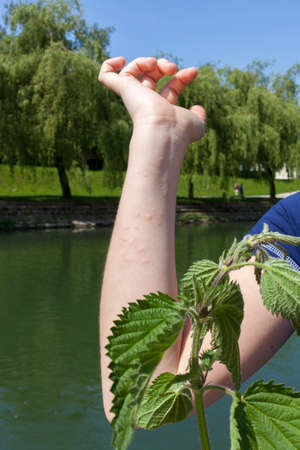stinging  nettle: Acute allergic reaction after touching stinging nettle leaves, series of high resolution photos