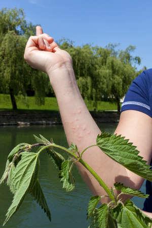 pokrzywka: Ostra reakcja alergiczna po dotknięciu liście pokrzywy, seria zdjęć o wysokiej rozdzielczości Zdjęcie Seryjne