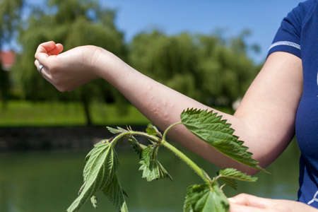 pokrzywka: Ostra reakcja alergiczna po dotknięciu liście pokrzywy, serię zdjęć o wysokiej rozdzielczości Zdjęcie Seryjne