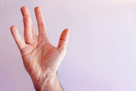 Hand of an man with Dupuytren contracture  disease, against  bright background, isolated